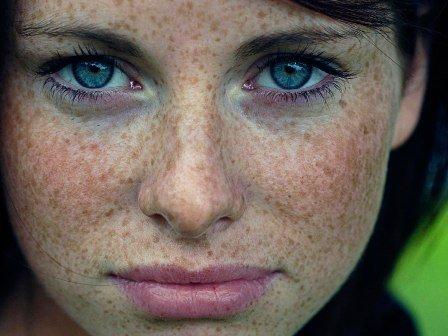 девушка с пигментацией, методы борьбы с пятнами