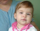 врожденный порок лица у ребенка, заячья губа и волчья пасть у новорожденного