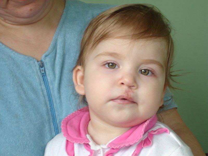 Заячья губа: как кормить и ухаживать Институт Гончакова