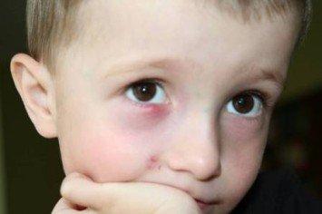 у ребенка на веке халязион, причины возникновения и методы лечения