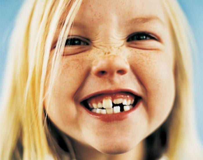 улыбающаяся девочка, нарушение прикуса у ребенка