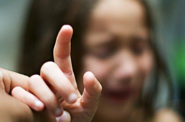 у ребенка заноза, способы удаления занозы