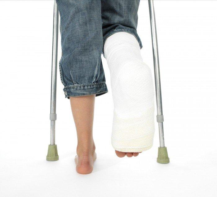 перелом ноги, как помочь ребенку справится с переломом