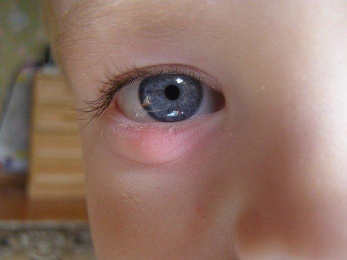 у ребенка на глазу халязион, причины возникновения халязиона
