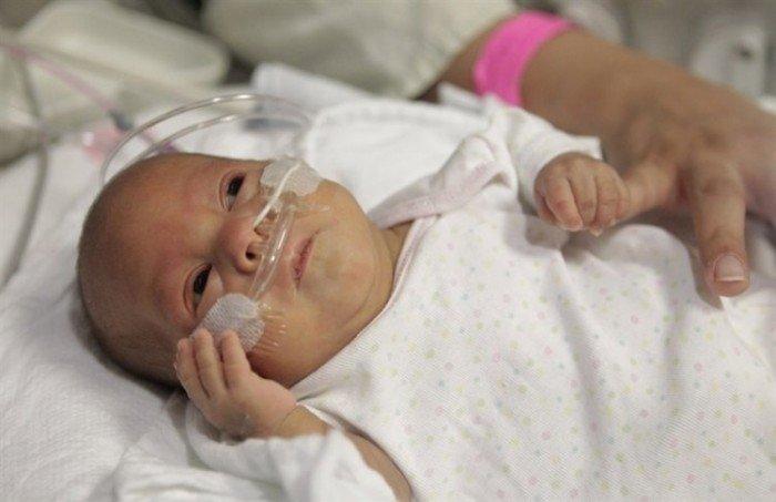 недоношенный малыш, травмирование глаз у новорожденных