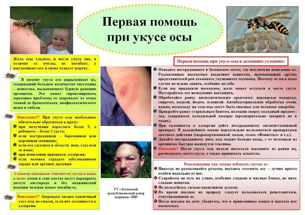 инфографика первая помощь при укусе осы
