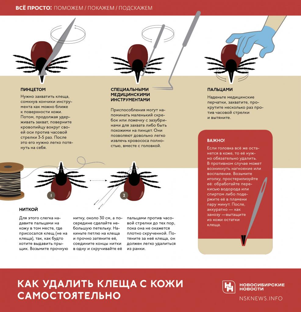 инфографика как удалить клеща