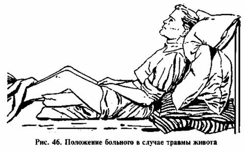 положение тела при травме живота