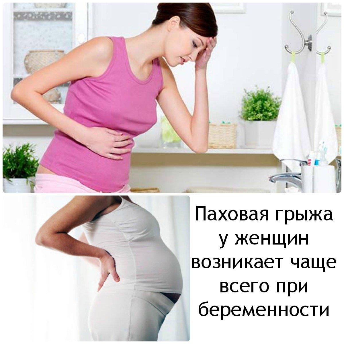 Паховая грыжа и беременность