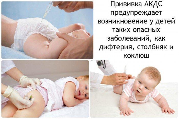 прививка АКДС предупреждает возникновение у детей  таких опасных заболеваний, как дифтерия, столбняк и коклюш
