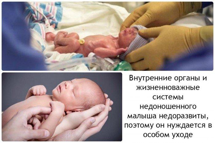 внутренние органы и системы недоношенного малыша недоразвиты, поэтому он нуждается в особом уходе