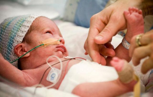 недоношенный малыш подключен к жизнеподдерживающим системам