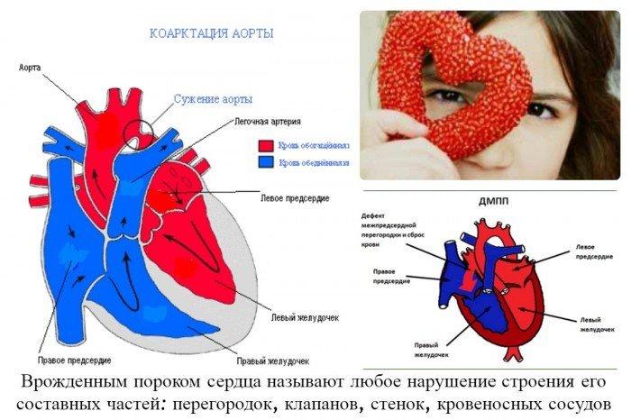 Что такое врожденный порок сердца?