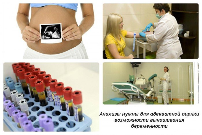 Женская консультация: анализы для беременных