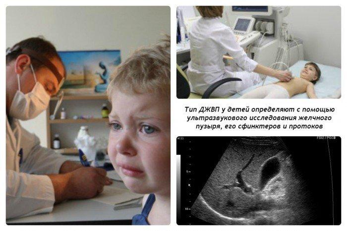 Дискинезия желчевыводящих путей у детей: типы