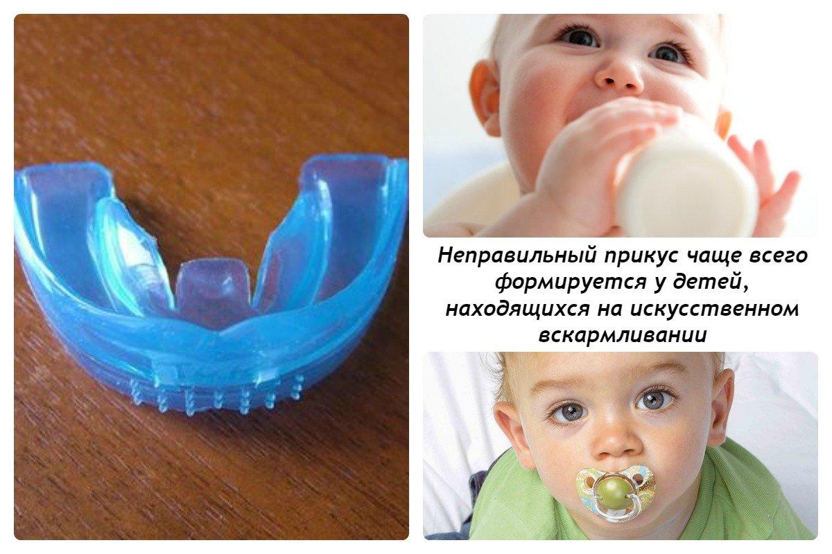 плохо растут молочные зубы у детей схема