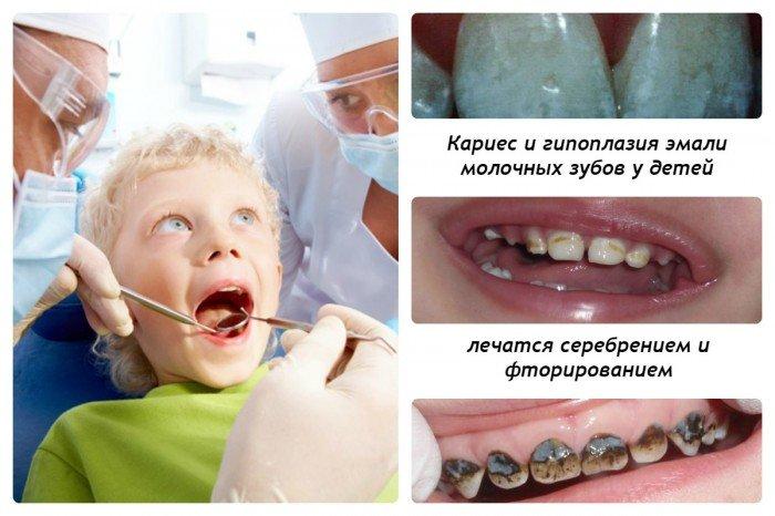Серебрение и фторирование молочных зубов
