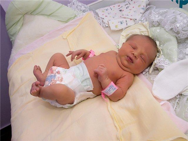 новорожденный, причины обвития пуповиной