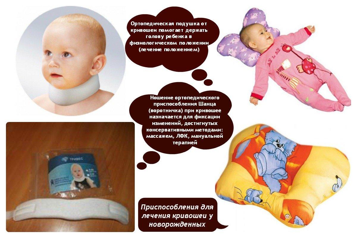 признаки кривошея у младенцев фото