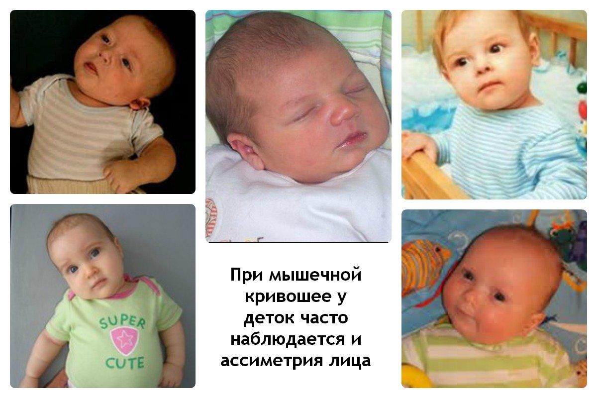 Что такое кривошея у ребенка фото