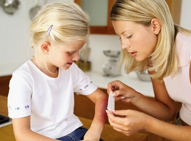 Мама накладывает дочке многослойную повязку при ожоге
