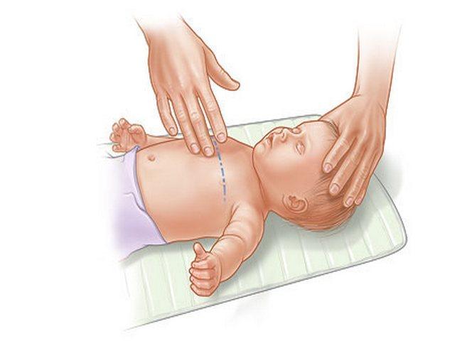Непрямой массаж сердца младенцу