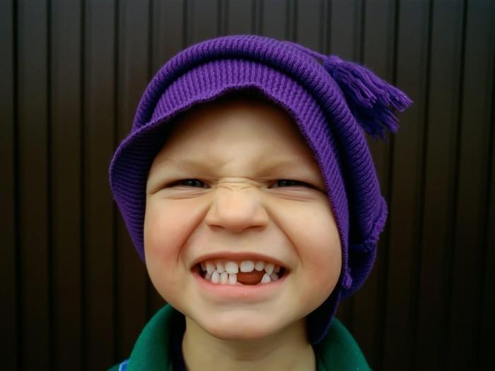 у мальчика выпали зубы, появление постоянных зубов