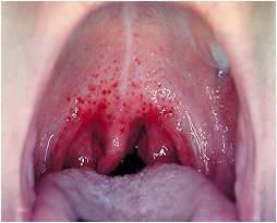 Проявление скарлатины на языке и слизистой