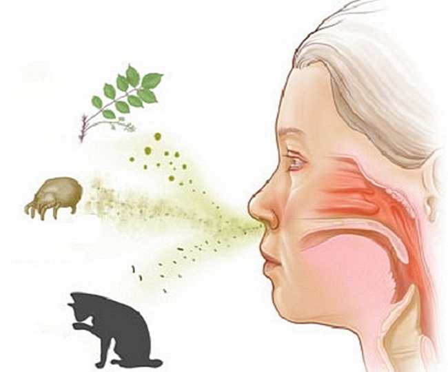 Причины аллергического кашля у детей