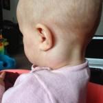 Ребёнок с воспалёнными лимфоузлами