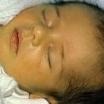 Ребёнок, болеющий желтухой