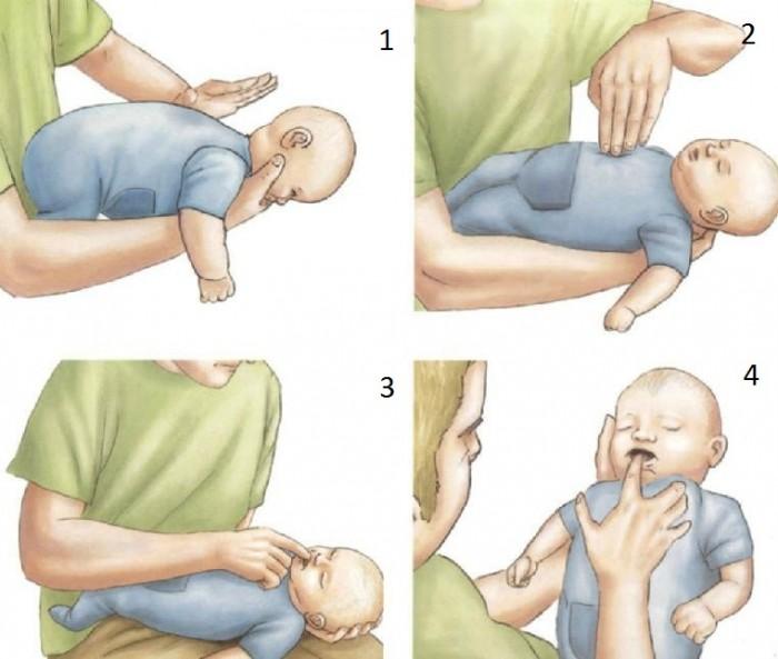 Первая помощь в случае, если ребёнок подавился
