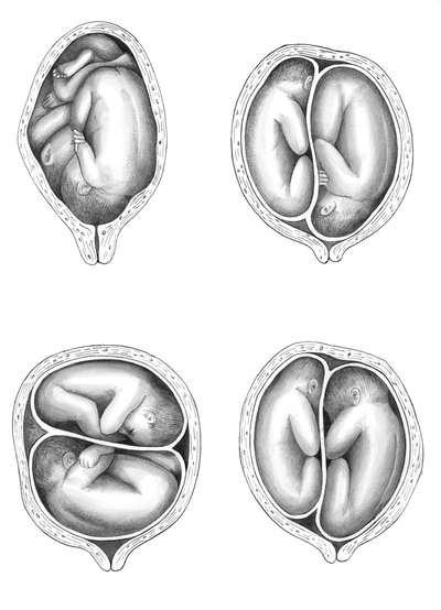 Варианты расположения близнецов в матке