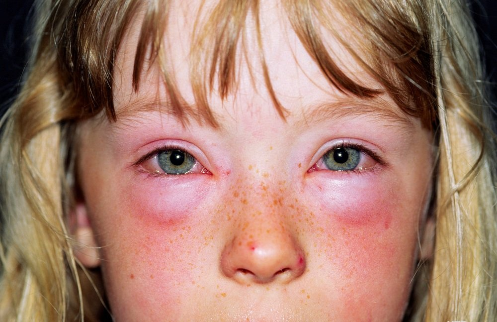 аллергия на писюле у девочки фото