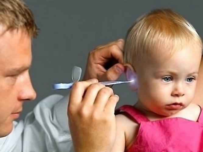 Отоскопия при отите у ребёнка