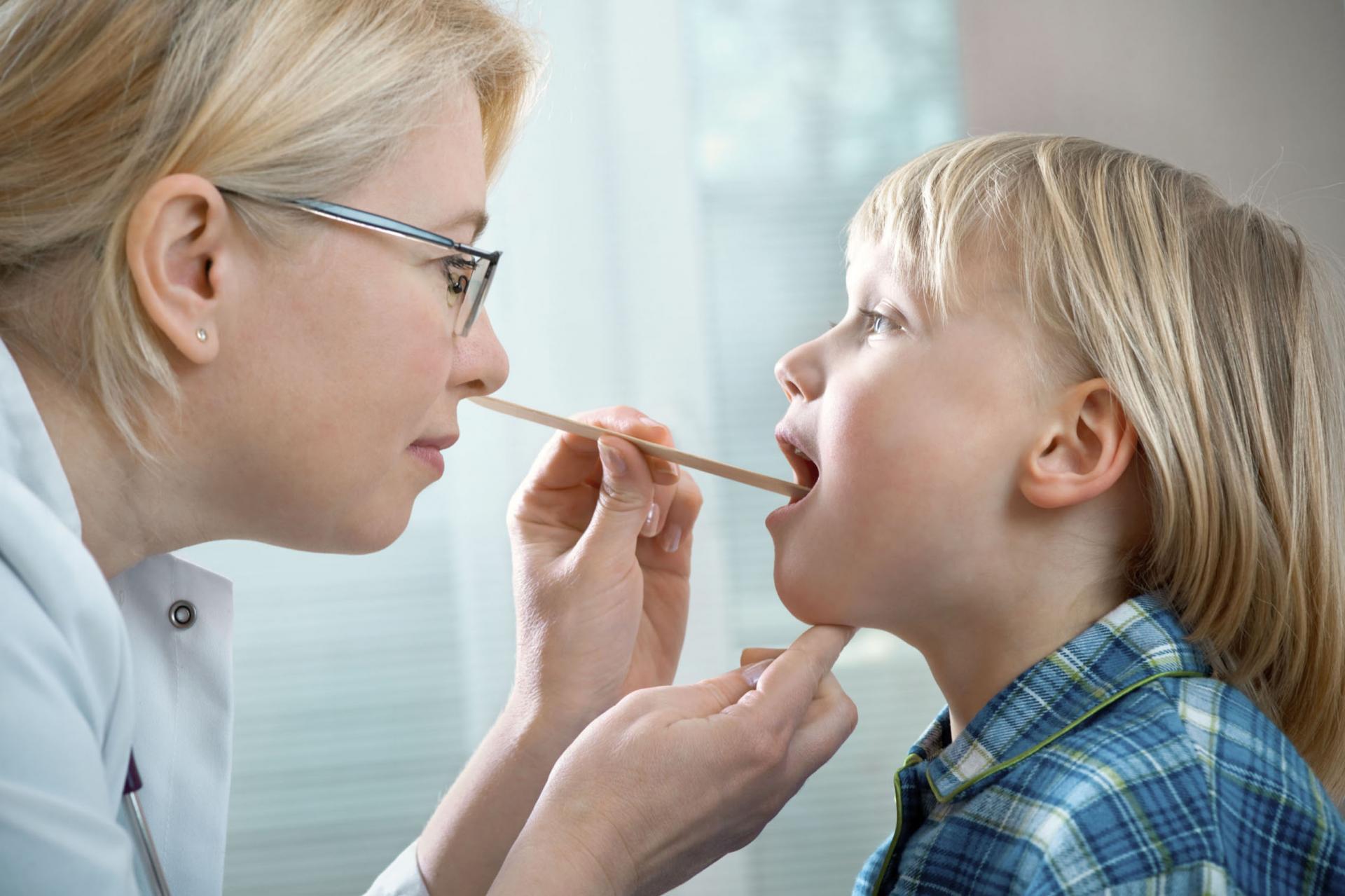 Симптомы фарингита у детей — как определить болезнь?