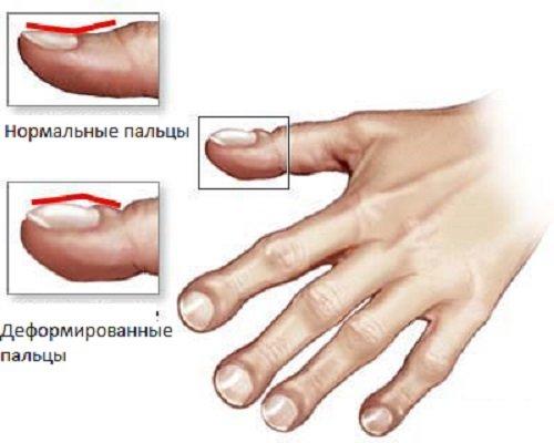 От чего форма барабанных форм ногтей