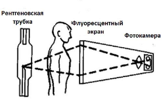 схема флюорографическогообследования