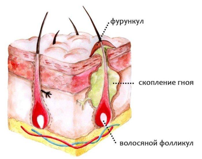 фурункулёз