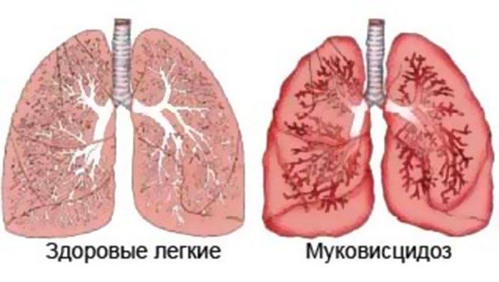 муковисцидоз диагностика