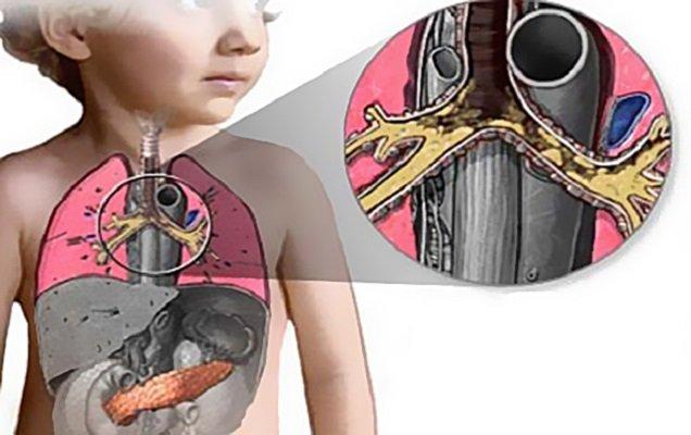 Что такое муковисцидоз у детей особенности генетического заболевания