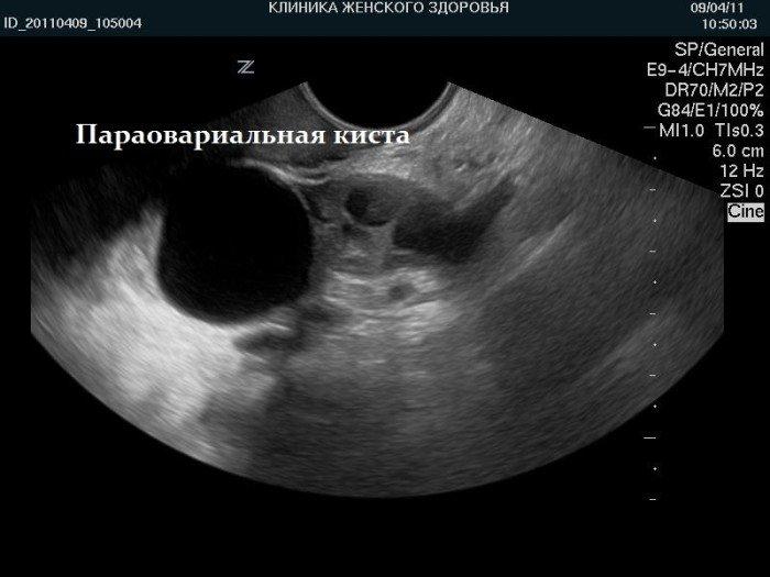Параовариальная киста правого яичника
