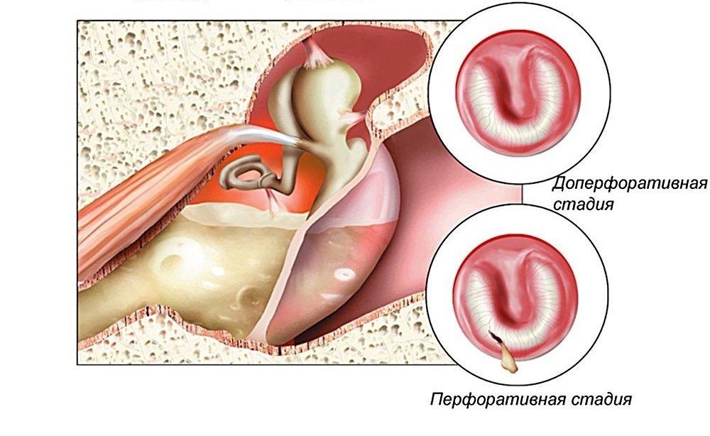 Миринготомия