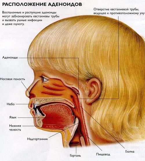 Расположение аденоидов