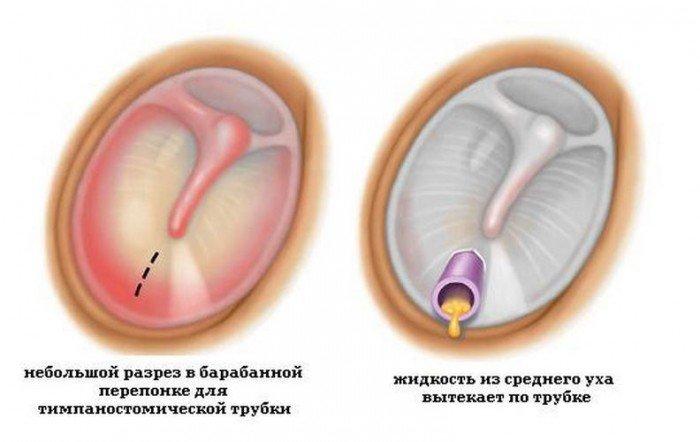 Схема проведения тимпаностомии