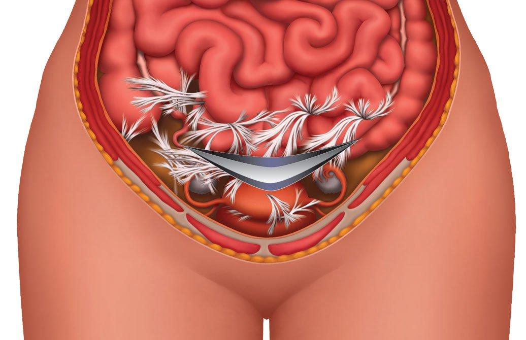 Симптомы спаек после кесарева сечения, их лечение и пр особенности