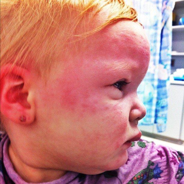 Анафилаксия у ребёнка