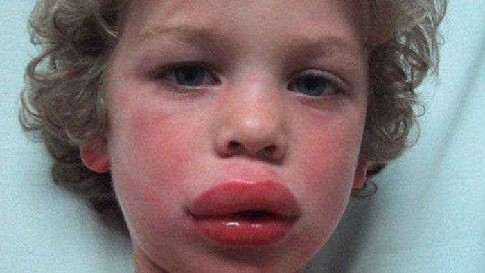 аллергическая реакцияу ребёнка