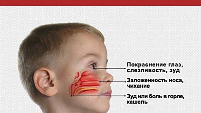 Симптомы бытовой аллергии