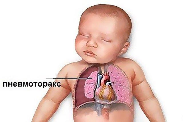 пневмоторакс у новорождённого